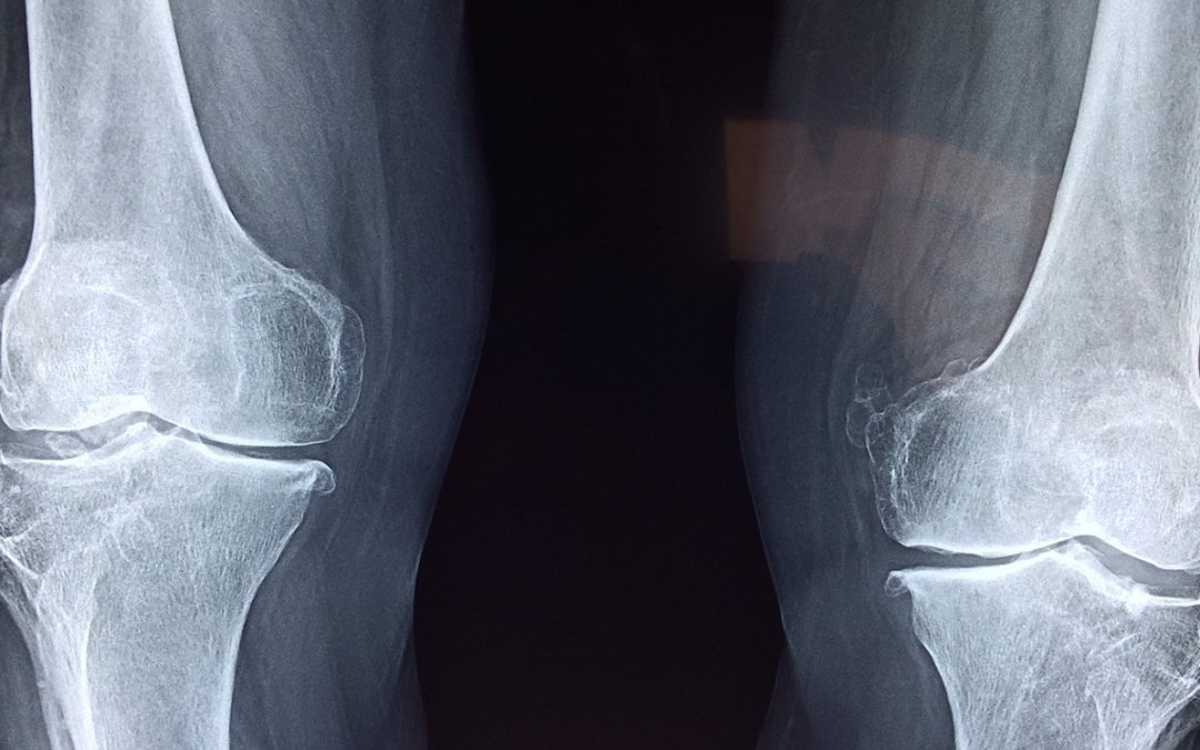 Preventing and Improving Knee Pain